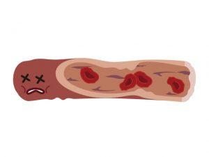 ドロドロ血液